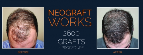 Neograft results Henderson Nevada